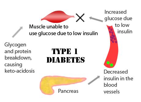 Diabetes type I